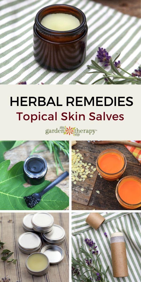 Herbal Topical Remedies